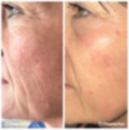 plasma-pen-treatment-before-and-after-ch