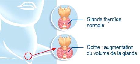 hémorragie corde vocale