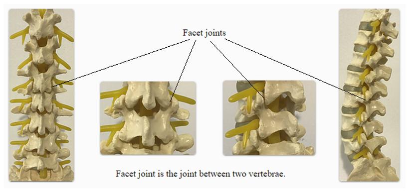 Facet Joint Pain Arthritis Tuckahoe Yonkers Poughkeepsie Nyc