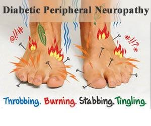 peripheral neuropathy among patients living with diabetes Diabetic peripheral neuropathy is the most common form of diabetic neuropathy occurs both in patients with insulin-dependent diabetes and in those with non-insulin- dependent diabetes, affecting both sexes in approximately equal proportion.