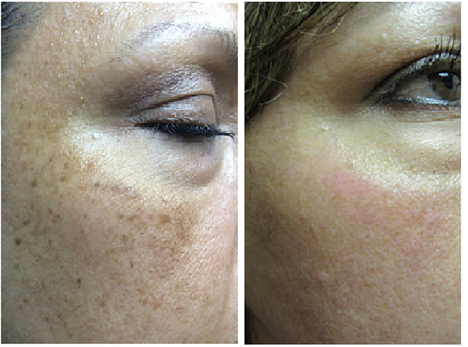 Facial discoloration treatment