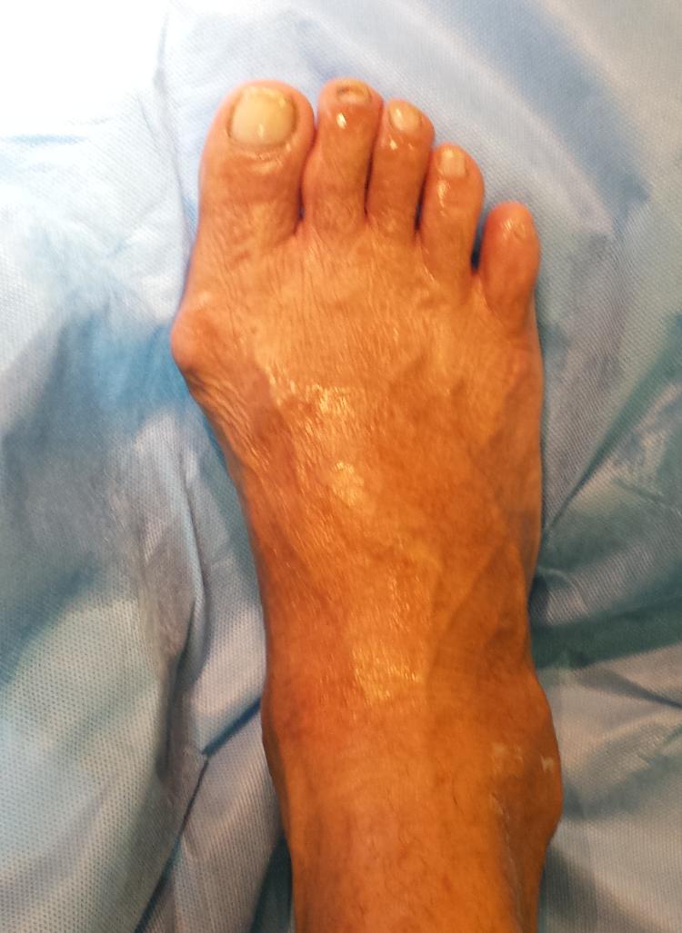 joanete dedão do pé