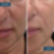 Filler & Botox B&A.png