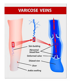 varicose-veins-894x1024.jpg