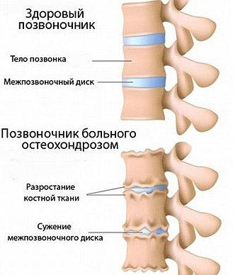 Болит спина в области правой почки ноет