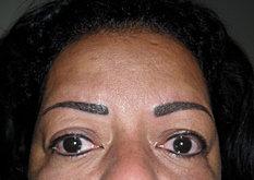 Sobrancelha e Contorno de Olhos