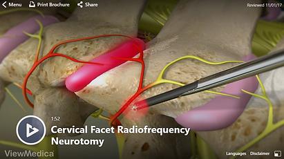Cervical RFA.PNG