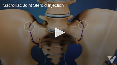 Sacroiliac Joint Steroid Inj..JPG
