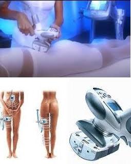 LPG endermologie remodelacion corporal