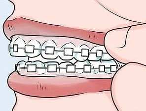 Have you heard about diy braces orthodontic kits missdonyame dental braces also known as orthodontic braces or braces are devices used in orthodontics that align and straighten teeth and help to position them with solutioingenieria Images