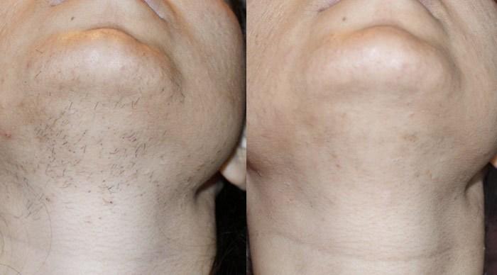 At home laser facial hair removal