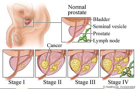 Боли после эякуляции простата