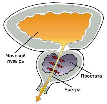 gerpes-i-prostata