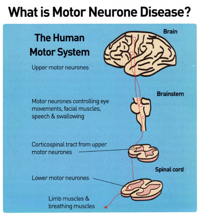 motor neurone disease symptoms early make everything you On motor neurone disease symptoms early