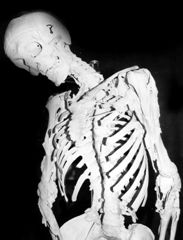 the cause effects and treatments of fibrodysplasia ossificans progressiva Fibrodysplasia ossificans progressiva (fop) is a condition in which bone grows outside the skeleton abnormal bone growth replaces connective tissue, including tendons and ligaments.