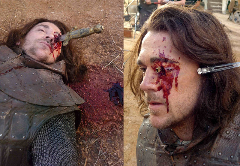 Image Result For Casualty