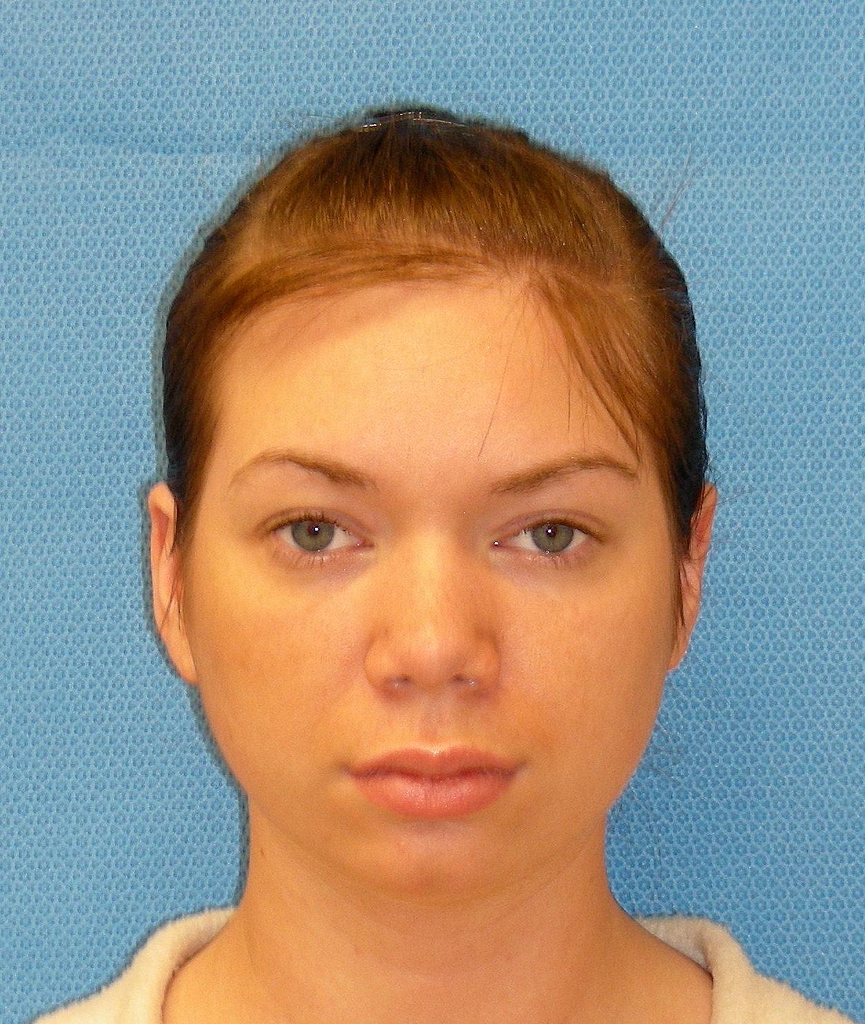 Arkansas facial plastic surgery