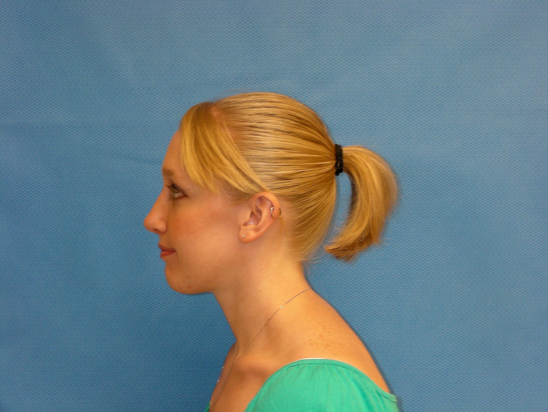 Possible arkansas facial cosmetic surgery think