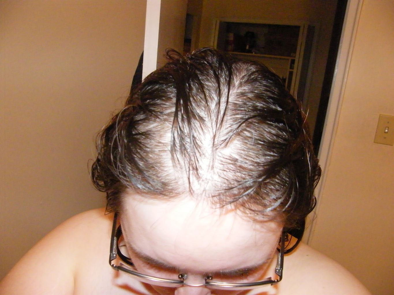 pcos weight loss hair thinning