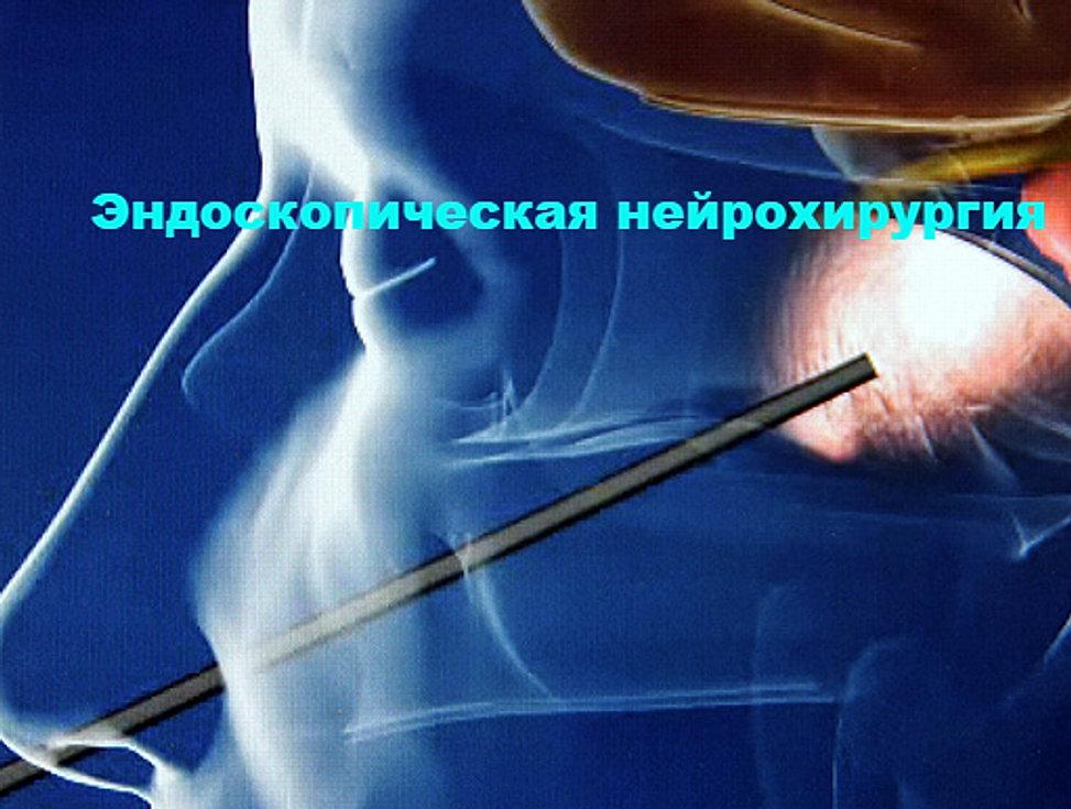 Беременность и рентген шеи