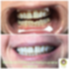 Britesmile 1-hour Teeth Whitening