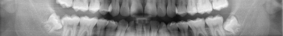 King Street Dental_Wisdom Teeth Dentist Newcastle