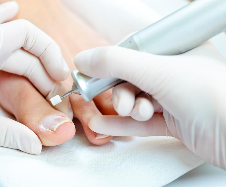 Afbeeldingsresultaat voor pedicure behandeling