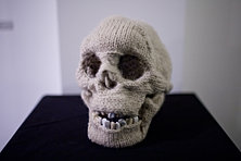 Intact Skull