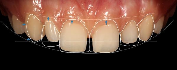 Dentiste Paris 16