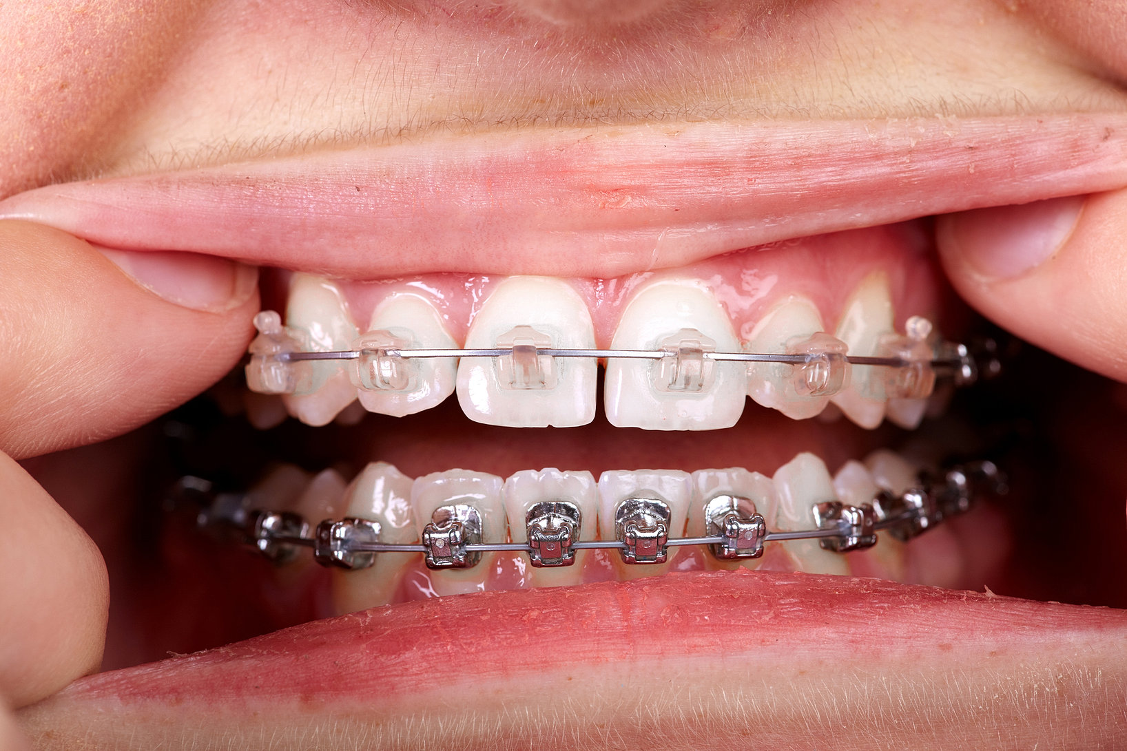 does invisalign work