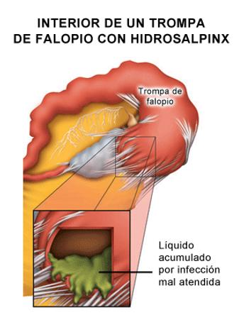 Qué es el hidrosalpinx?