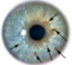 iris with markings.jpg