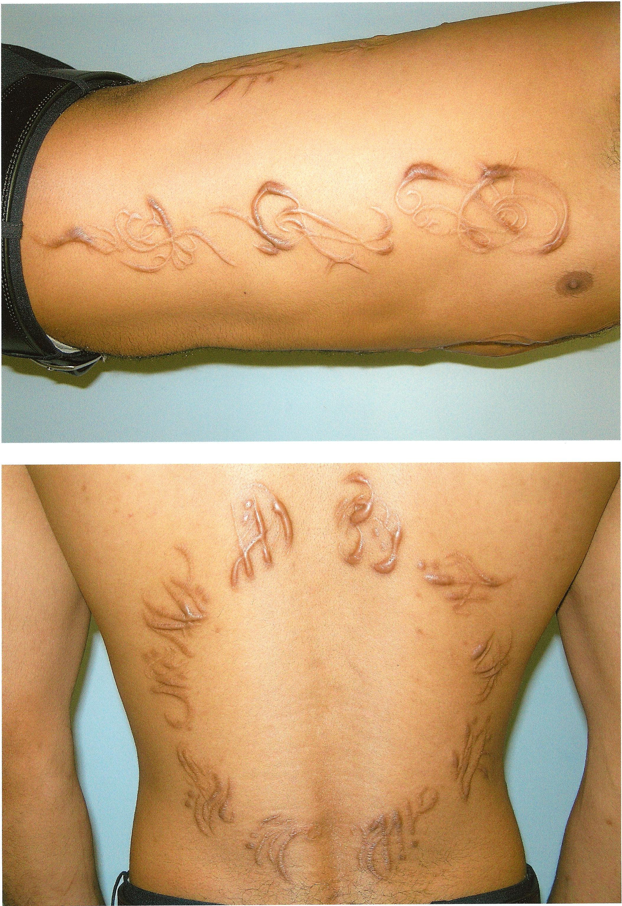 Deep Roots Tattoo And Piercing Scarification By Rion Wickersham