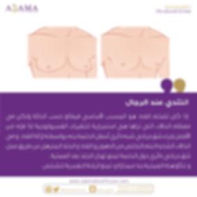 Gynecomastia.jpg.jpeg