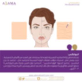 Botox2.jpg.jpeg