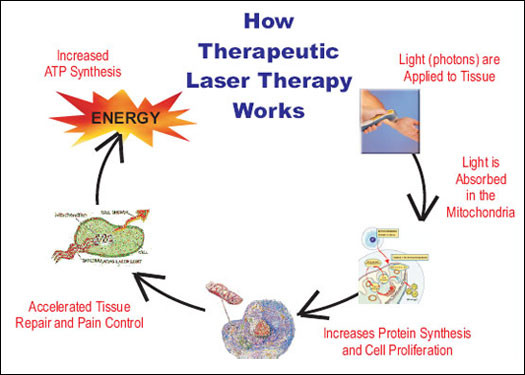 Laser Therapy Airdrie Physiotherapy Amp Massage Start