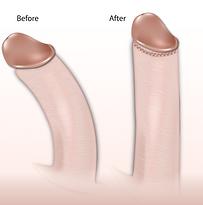 erworbene penisverkrümmung