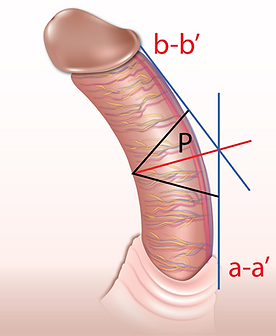 curved penis pictures