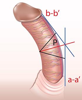Congenital Curvature Penis 76