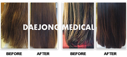 Collagen Keratin Hair Treatment Hair Keratin Treatment Before