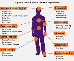 Long Term Medical Effects Of Opiods Dependence