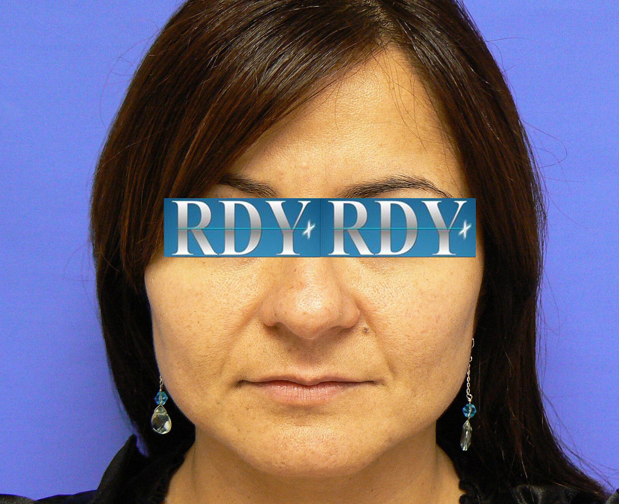 cosmetic surgery media essay
