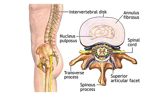 Spinal-Stenosis-2.png
