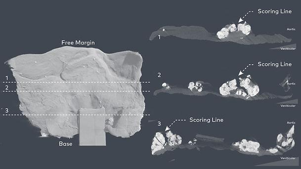 Venticular 3D Diagram Corrected.jpg