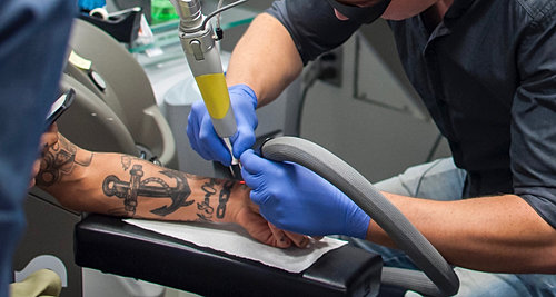 Laser tattoo removal training school for Laser tattoo removal certification