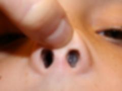 Alergias nasales, alergias respiratorias
