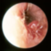 Otorrinolaringología | Tratamiento de Otitis Externa