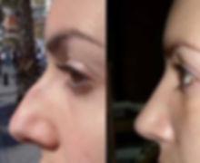 cirugia de nariz, rinoplastia, septoplastia