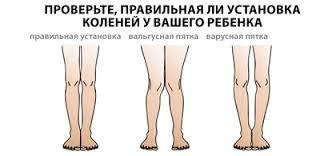 Вальгус (х-образное искривление ног у детей) | Легошин Дмитрий ...