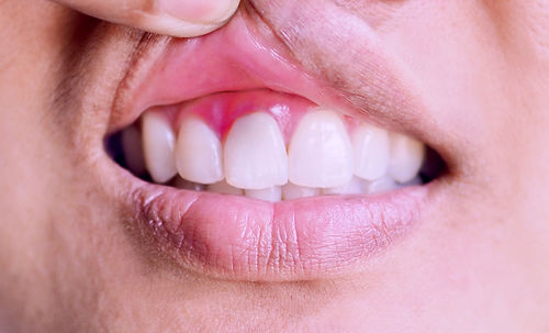 Inflammation of the gums and teeth..jpg